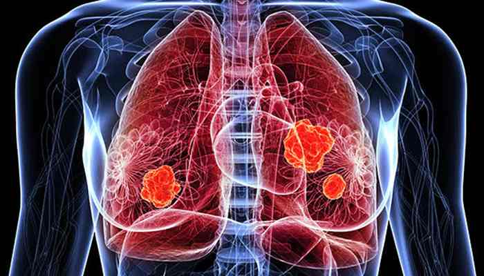 lung-cancer-facts-signs-you-should-know-about