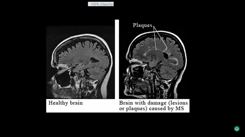 multiple sclerosis 5 facts brain damage